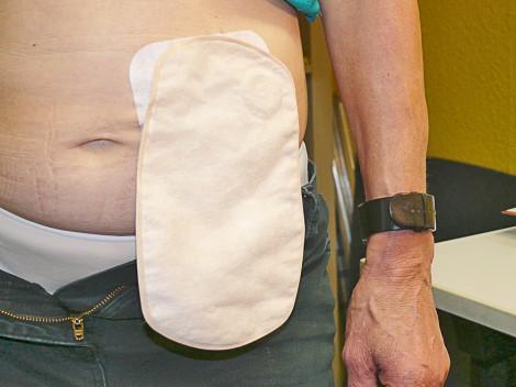 Dieses Foto zeigt einen Patient mit einem Stomabeutel am Bauch.